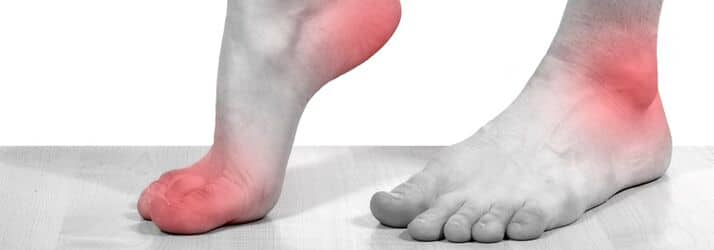 neuropathy care in Bloomington IL
